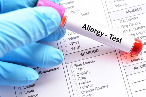 Three reasons you need allergy testing